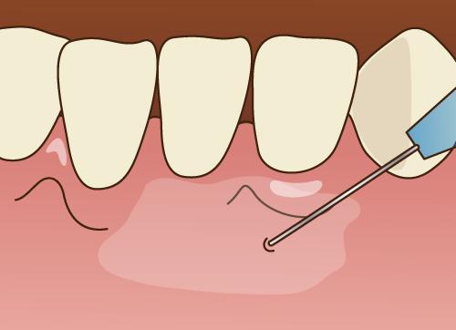 芦屋のBio Dental Clinic ASHIYAでは細い注射針を使用することで痛みのない無痛治療を行っています