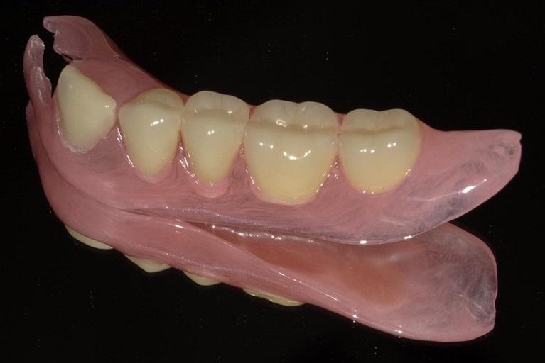 義歯(デンチャー)