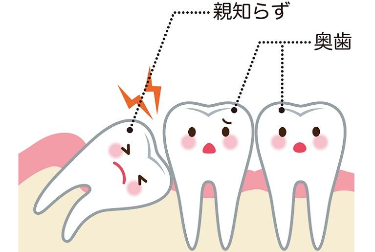 芦屋で親知らずの抜歯ならBio Dental Clinic ASHIYA