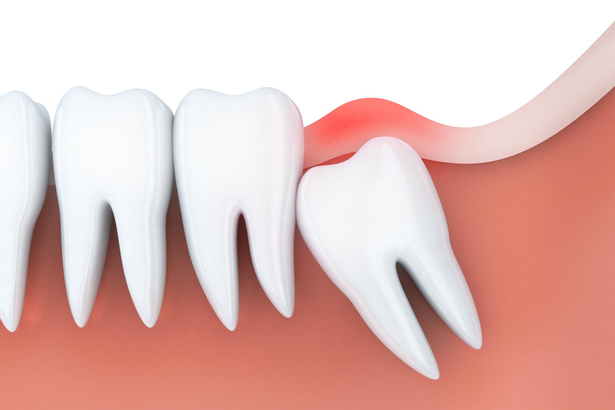 芦屋で親知らずを抜くならBio Dental Clinic ASHIYA